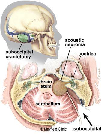 Neurinoma del acústico. Vía retrosigmoidea.